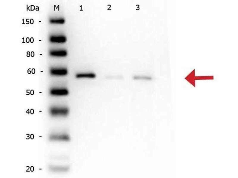 Image no. 2 for anti-V-Akt Murine Thymoma Viral Oncogene Homolog 1 (AKT1) (AA 460-480), (C-Term), (pSer473) antibody (ABIN94784)