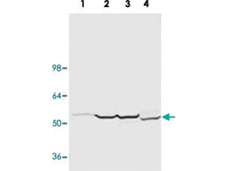https://www antibodies-online com/antibody/3170284/anti
