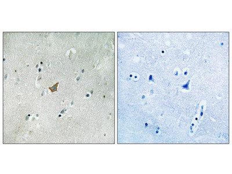 Immunohistochemistry (IHC) image for anti-EPH Receptor A3 (EPHA3) (C-Term), (pTyr672), (pTyr779), (pTyr780), (pTyr833), (pTyr835) antibody (ABIN1847592)