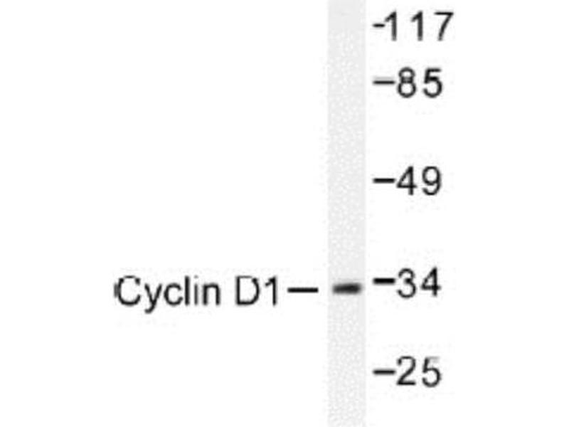 Western Blotting (WB) image for anti-Cyclin D1 (CCND1) antibody (ABIN408117)