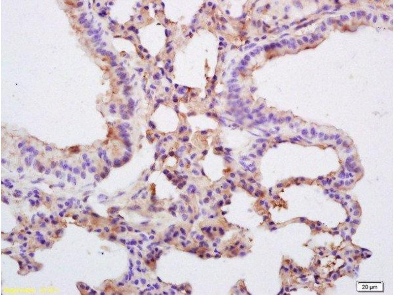 Immunohistochemistry (Paraffin-embedded Sections) (IHC (p)) image for anti-Caspase 3, Apoptosis-Related Cysteine Peptidase (CASP3) (AA 1-45) antibody (ABIN747728)