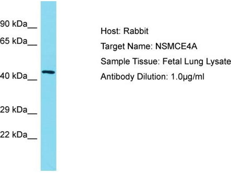 Western Blotting (WB) image for anti-Non-SMC Element 4 Homolog A (S. Cerevisiae) (NSMCE4A) (C-Term) antibody (ABIN2791705)