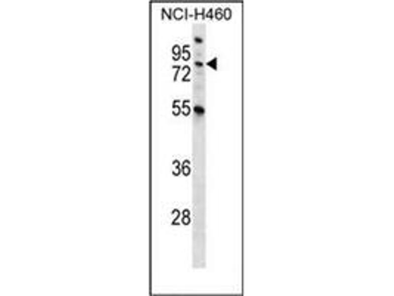 Western Blotting (WB) image for anti-Macrophage Stimulating 1 (Hepatocyte Growth Factor-Like) (MST1) (AA 475-505), (C-Term) antibody (ABIN953271)