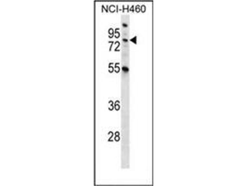 Western Blotting (WB) image for anti-Macrophage Stimulating 1 (Hepatocyte Growth Factor-Like) (MST1) (AA 475-505), (C-Term) antibody (ABIN953271)