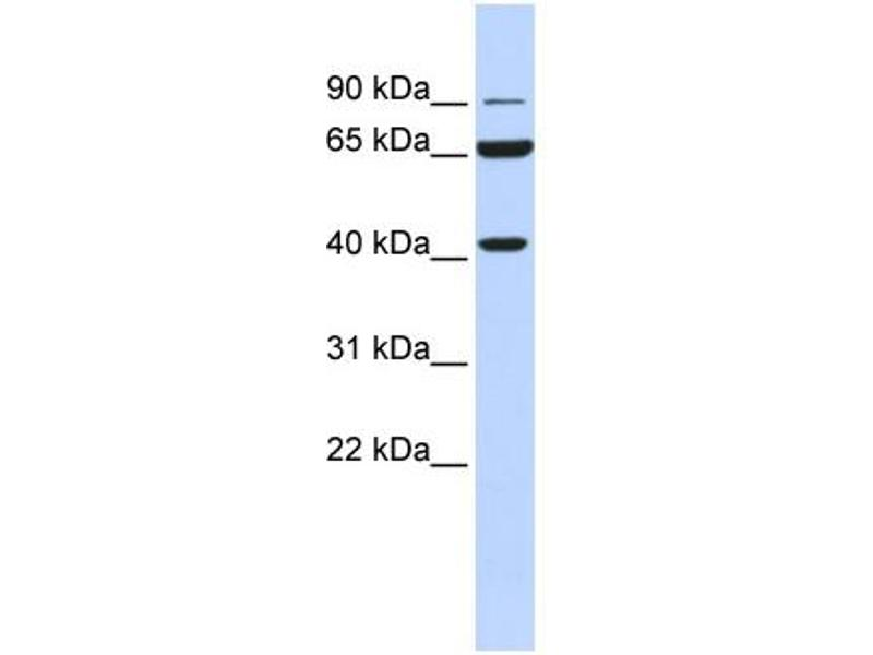 Western Blotting (WB) image for anti-Glucose Dehydrogenase (N-Term) antibody (ABIN406155)