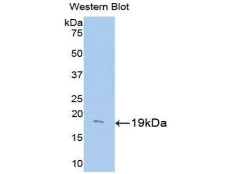 Western Blotting (WB) image for anti-Uncoupling Protein 2 (Mitochondrial, Proton Carrier) (UCP2) (AA 150-304) antibody (ABIN1175761)