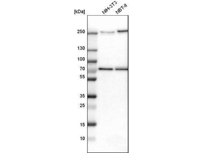 Western Blotting (WB) image for anti-TRIO and F-Actin Binding Protein (TRIOBP) antibody (ABIN4362544)