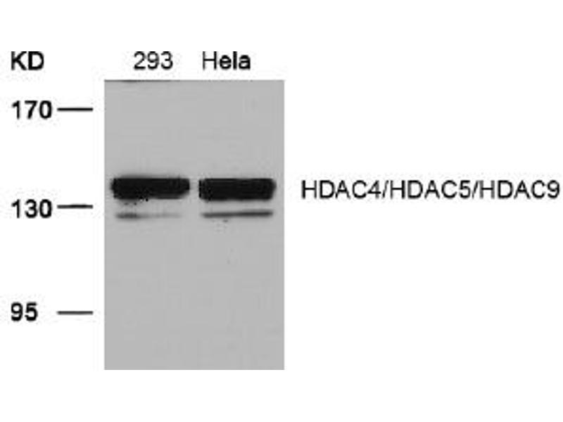 Image no. 3 for anti-HDAC4/HDAC5/HDAC9 (Ser220), (Ser246), (Ser259) antibody (ABIN319389)