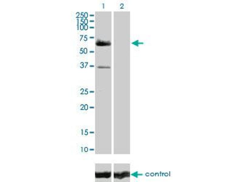 Western Blotting (WB) image for anti-V-Raf-1 Murine Leukemia Viral Oncogene Homolog 1 (RAF1) (AA 1-130), (partial) antibody (ABIN519618)