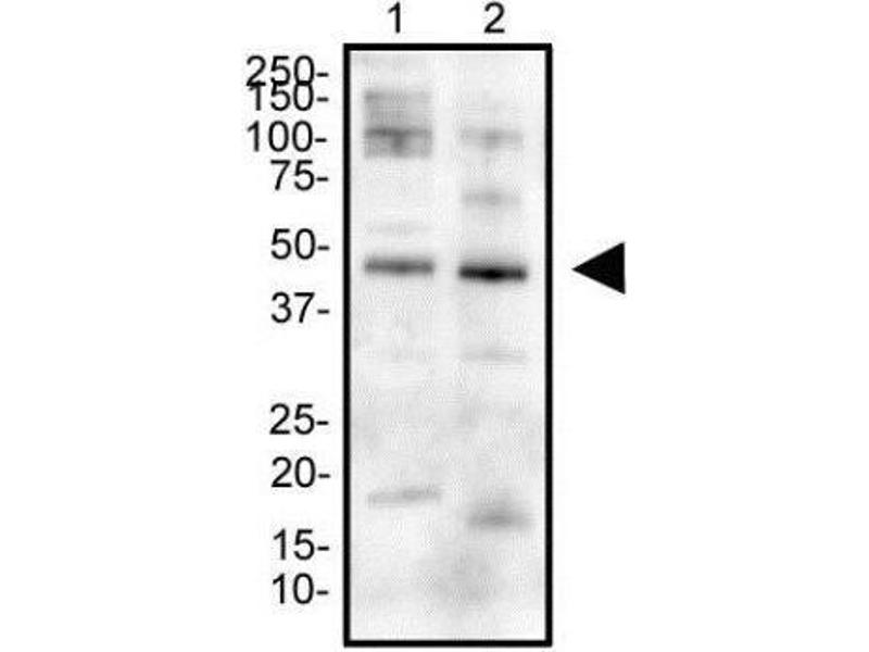 Western Blotting (WB) image for anti-Erythropoietin Receptor (EPOR) (AA 300-400), (Internal Region) antibody (ABIN446737)