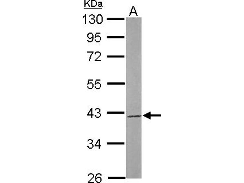 Western Blotting (WB) image for anti-SAE1 antibody (SUMO1 Activating Enzyme Subunit 1) (AA 3-247) (ABIN556523)