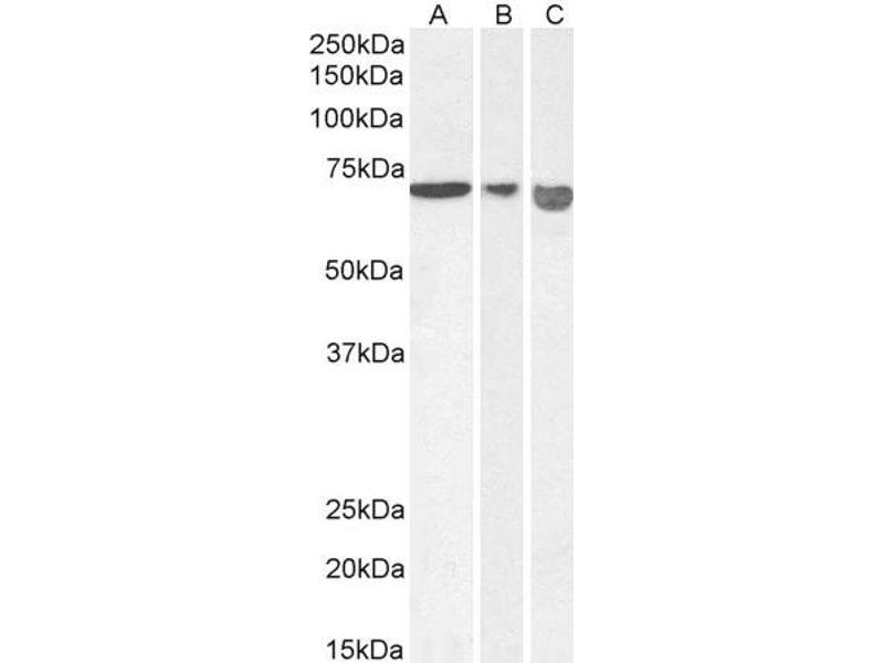 Western Blotting (WB) image for anti-Apoptosis-Inducing Factor, Mitochondrion-Associated, 1 (AIFM1) antibody (ABIN5893605)