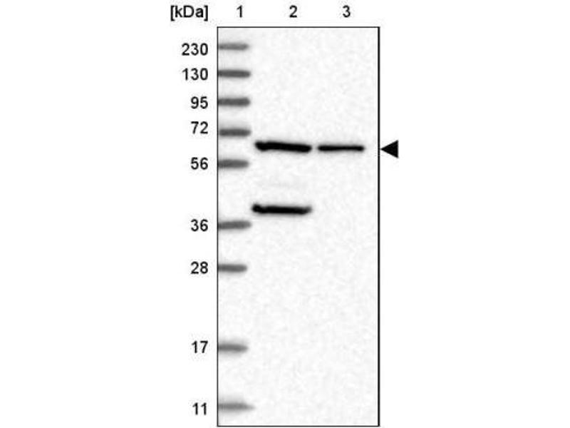 Western Blotting (WB) image for anti-Phosphoglucomutase 1 (PGM1) antibody (ABIN4345120)