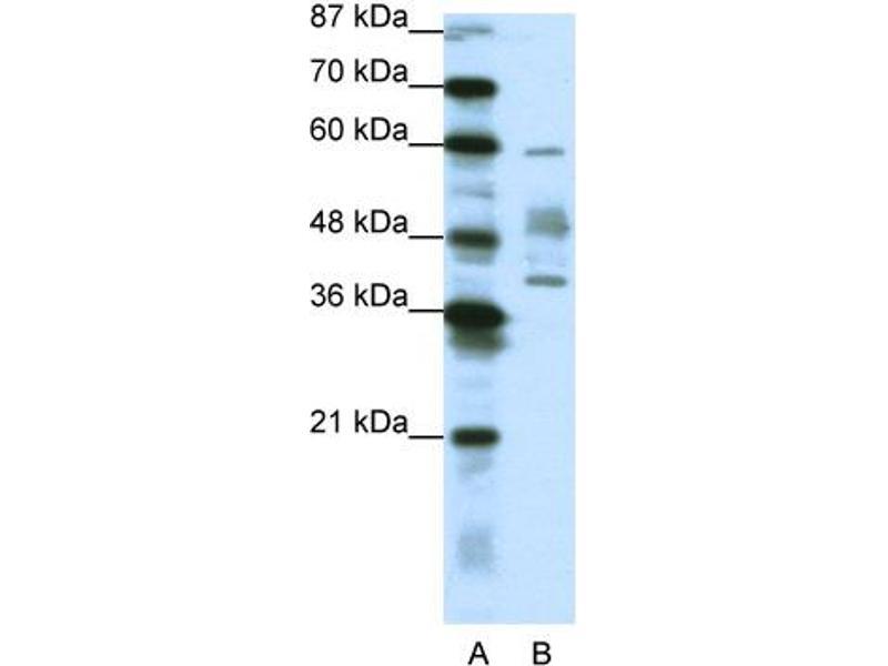 Western Blotting (WB) image for anti-Aprataxin antibody (APTX) (N-Term) (ABIN182697)