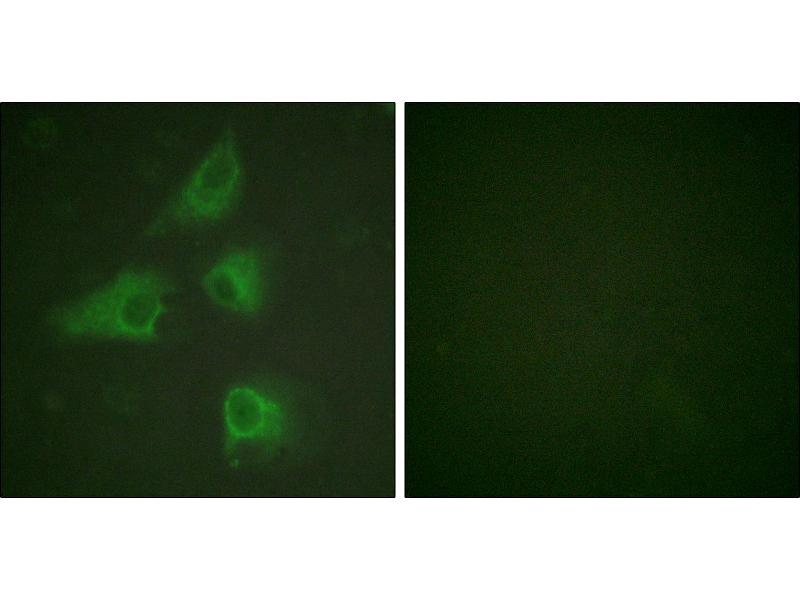 Image no. 3 for anti-Dystrophin Related Protein 2 (DRP2) (Thr514) antibody (ABIN1576127)