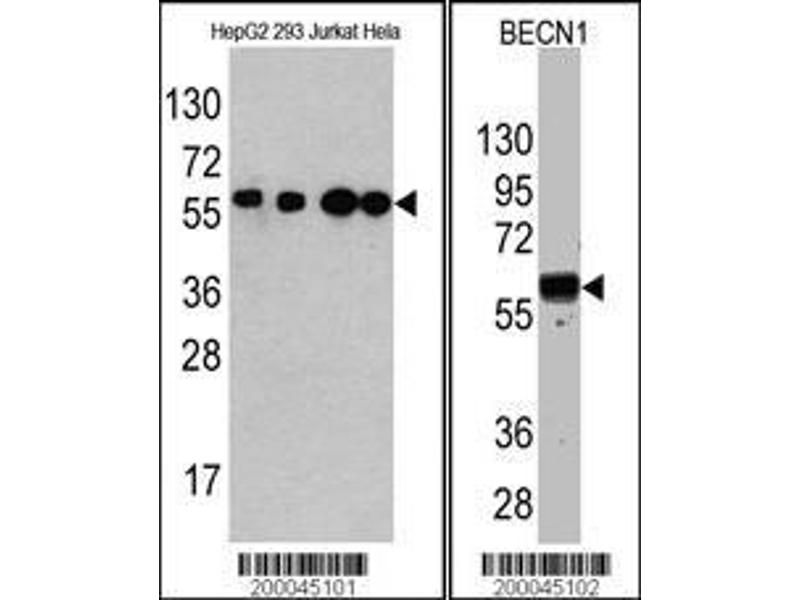 Western Blotting (WB) image for anti-Beclin 1 antibody (Beclin 1, Autophagy Related) (full length) (ABIN387797)