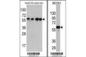anti-Beclin 1, Autophagy Related (BECN1) (full length) antibody