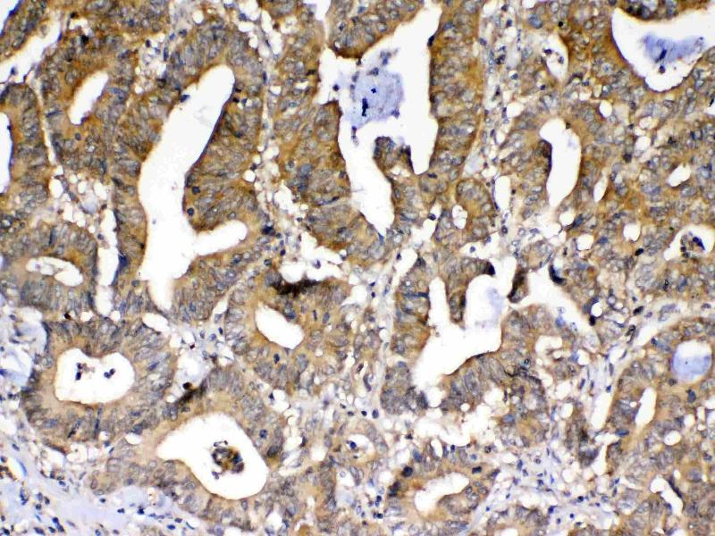Immunohistochemistry (IHC) image for anti-Peptidylprolyl Isomerase D (PPID) (AA 306-370) antibody (ABIN5693052)