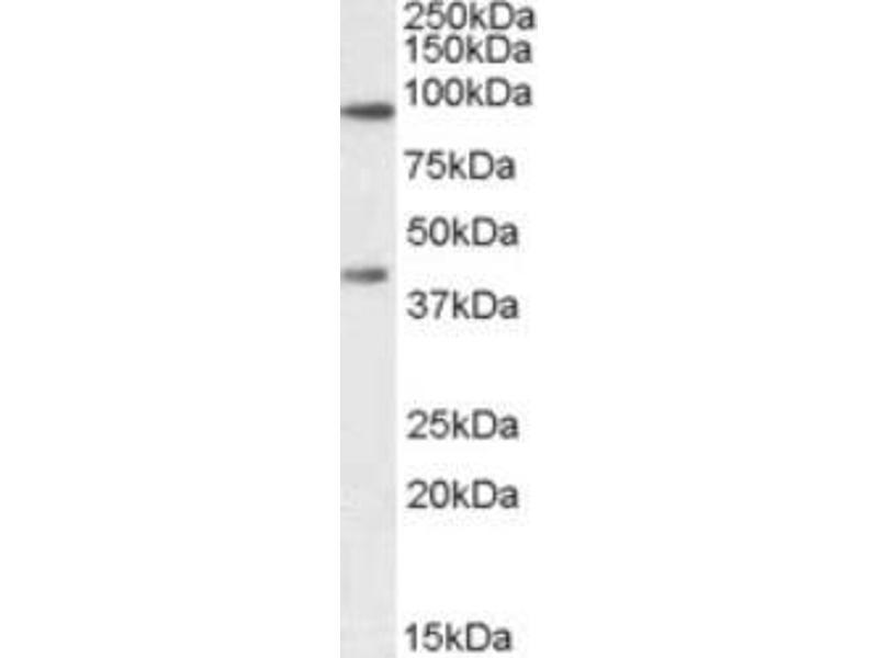 Western Blotting (WB) image for anti-ATP-Binding Cassette, Sub-Family B (MDR/TAP), Member 5 (ABCB5) antibody (ABIN408633)
