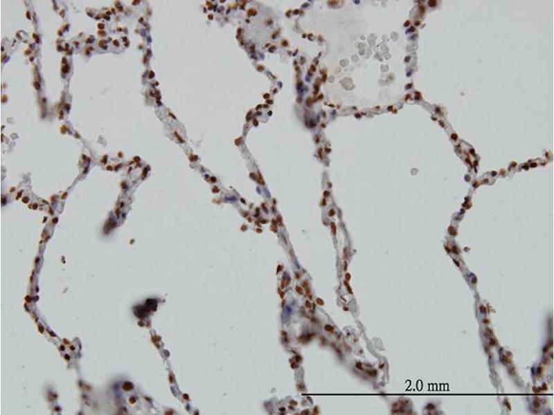 Immunostaining (ISt) image for anti-SGK1 antibody (serum/glucocorticoid Regulated Kinase 1) (AA 1-90) (ABIN562850)