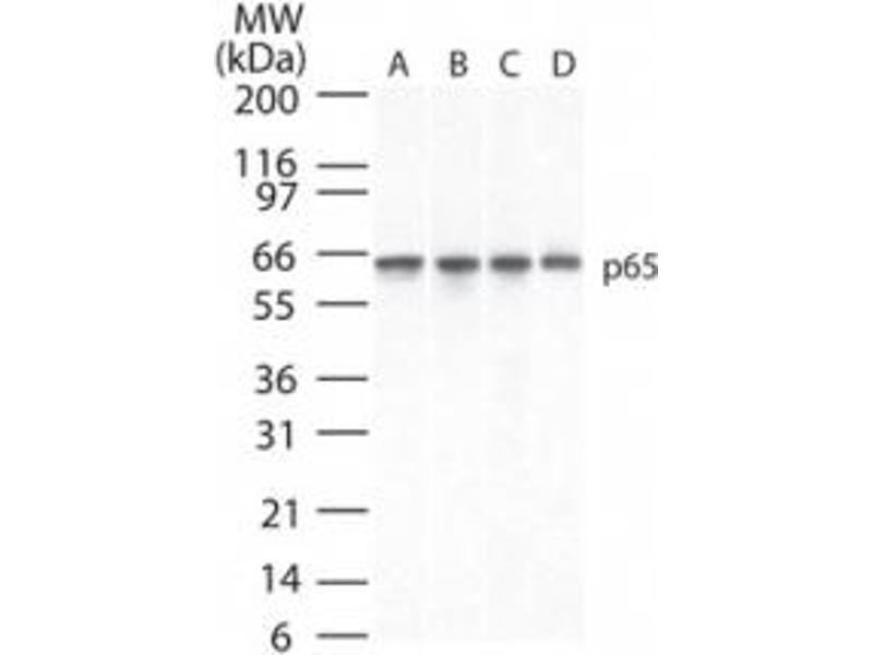 Western Blotting (WB) image for anti-Nuclear Factor-KB P65 (NFkBP65) antibody (ABIN252655)