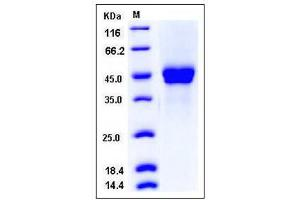 Image no. 1 for Pentraxin 3 (PTX3) (AA 1-381) protein (His tag) (ABIN2005030)