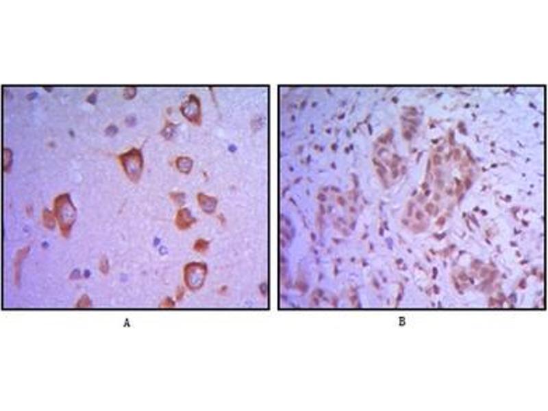 Immunohistochemistry (IHC) image for anti-V-Ets erythroblastosis Virus E26 Oncogene Homolog 1 (Avian) (ETS1) antibody (ABIN1107151)