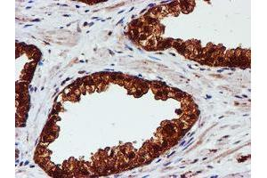 Image no. 9 for anti-Chromosome 1 Open Reading Frame 50 (C1ORF50) antibody (ABIN1497033)
