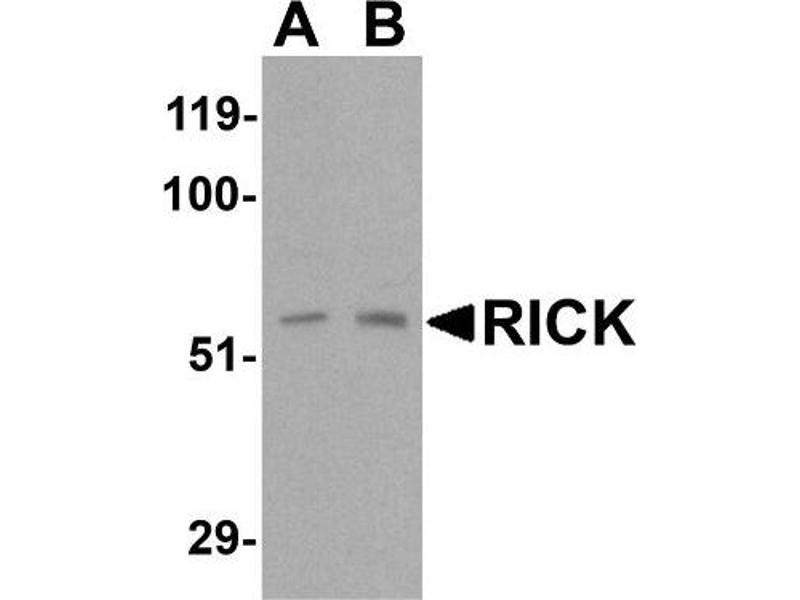 Western Blotting (WB) image for anti-RIPK2 antibody (Receptor-Interacting Serine-threonine Kinase 2) (C-Term) (ABIN4350591)