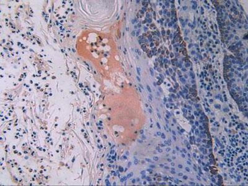 Immunohistochemistry (IHC) image for anti-Fibroblast Growth Factor Receptor 3 (FGFR3) (AA 166-375) antibody (ABIN1858880)