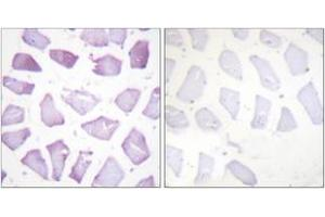 Image no. 2 for anti-phosphoprotein Enriched in Astrocytes 15 (PEA15) (AA 81-130), (pSer116) antibody (ABIN1531370)