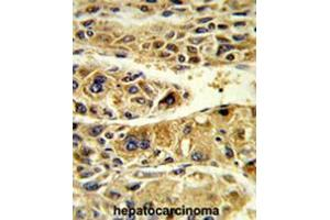 Image no. 2 for anti-Alcohol Dehydrogenase 6 (Class V) (ADH6) (AA 217-247), (Middle Region) antibody (ABIN950339)