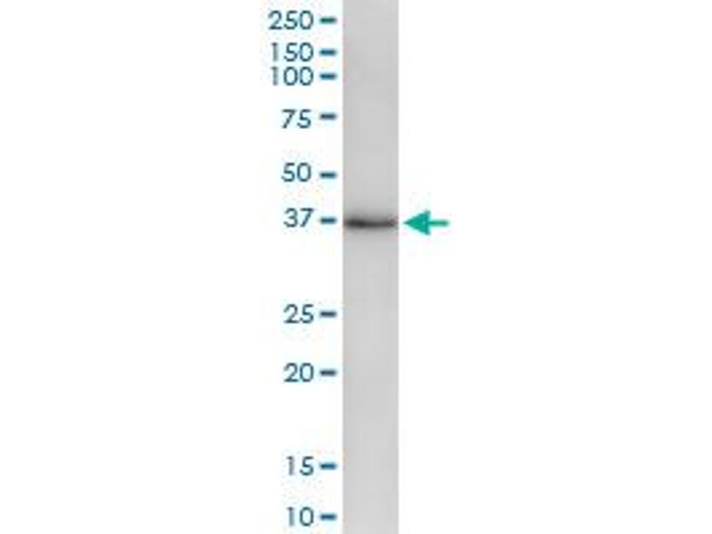 Immunoprecipitation (IP) image for anti-STE20-Related Kinase Adaptor alpha (STRADA) (AA 1-348), (full length) antibody (ABIN530100)