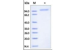 Image no. 1 for K-Cadherin (CDH6) (AA 19-615) protein (His tag) (ABIN2180863)