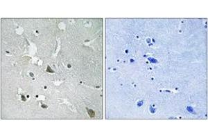 Immunohistochemistry (IHC) image for anti-Toll-Interleukin 1 Receptor (TIR) Domain Containing Adaptor Protein (TIRAP) (AA 52-101), (pTyr86) antibody (ABIN1532174)