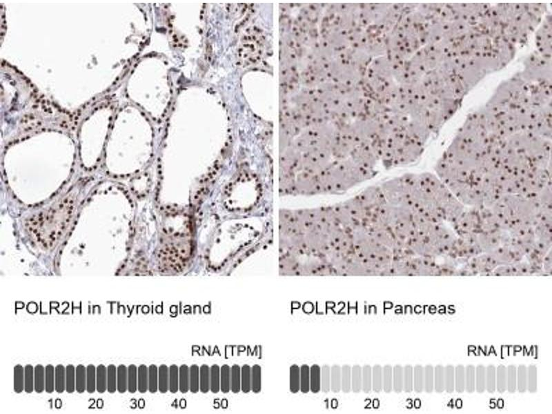 Immunohistochemistry (Paraffin-embedded Sections) (IHC (p)) image for anti-Polymerase (RNA) II (DNA Directed) Polypeptide H (POLR2H) antibody (ABIN4351017)