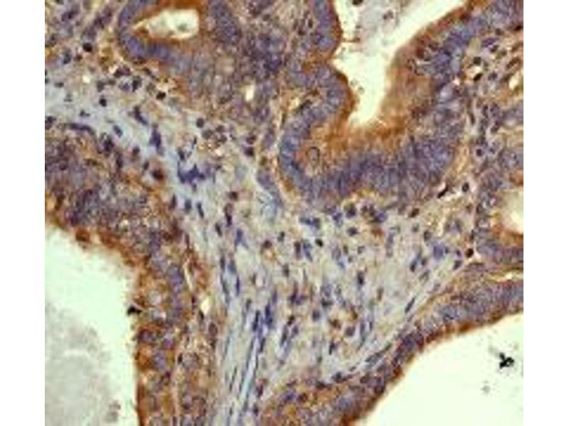 Immunohistochemistry (IHC) image for anti-TUBB3 antibody (Tubulin, Beta, 3) (C-Term) (ABIN258508)