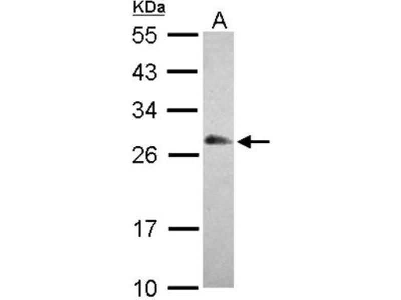 Western Blotting (WB) image for anti-RNA Binding Protein with Multiple Splicing (RBPMS) (Center) antibody (ABIN4349701)