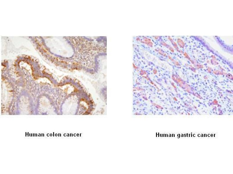 Immunohistochemistry (IHC) image for anti-EPH Receptor A2 antibody (EPHA2) (AA 559-976) (ABIN317512)