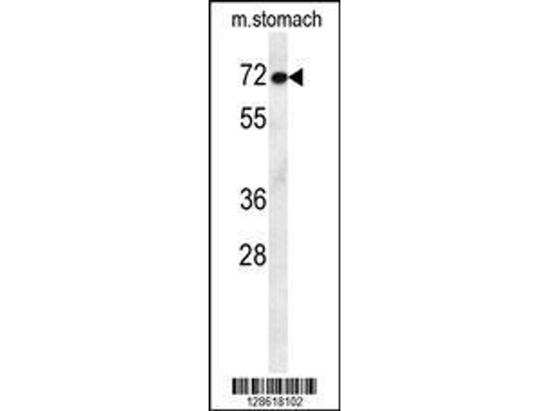 Western Blotting (WB) image for anti-Activating Transcription Factor 7 Interacting Protein 2 (ATF7IP2) (AA 318-347), (Center) antibody (ABIN654466)