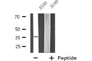 Image no. 2 for anti-Zinc Finger Protein 691 (ZNF691) antibody (ABIN6257575)