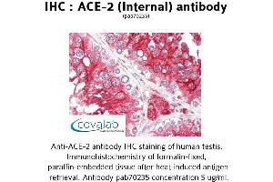 Image no. 2 for anti-Angiotensin I Converting Enzyme 2 (ACE2) (Internal Region) antibody (ABIN1731441)