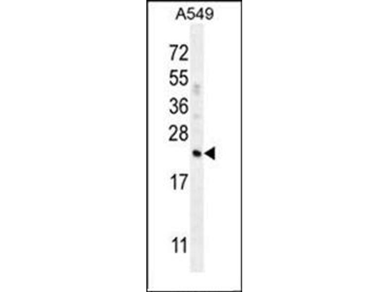 Western Blotting (WB) image for anti-Adipsin antibody (Complement Factor D) (AA 75-107) (ABIN951645)