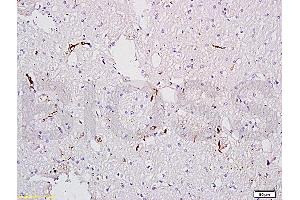 Immunohistochemistry (IHC) image for anti-Coagulation Factor VIII (F8) antibody (ABIN668601)