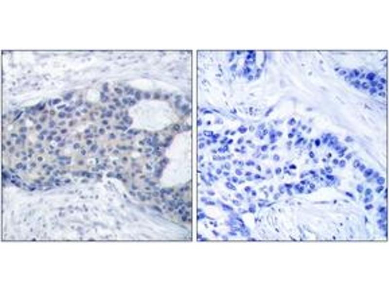 Immunohistochemistry (IHC) image for anti-ZAP70 antibody (zeta-Chain (TCR) Associated Protein Kinase 70kDa) (pTyr493) (ABIN1532002)