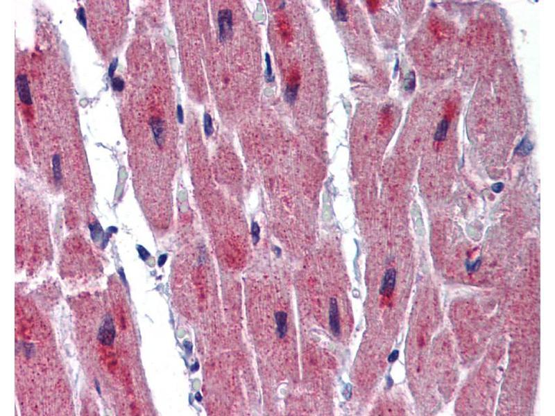 Immunohistochemistry (IHC) image for anti-RNA Binding Motif Protein 24 (RBM24) (Middle Region) antibody (ABIN2776655)