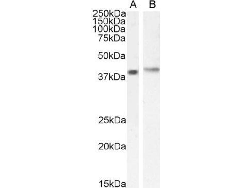 Image no. 3 for anti-Cytohesin 1 Interacting Protein (CYTIP) (N-Term) antibody (ABIN184711)