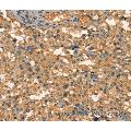 Immunohistochemistry of Human brain  using APC Polyclonal Antibody at dilution of 1:25