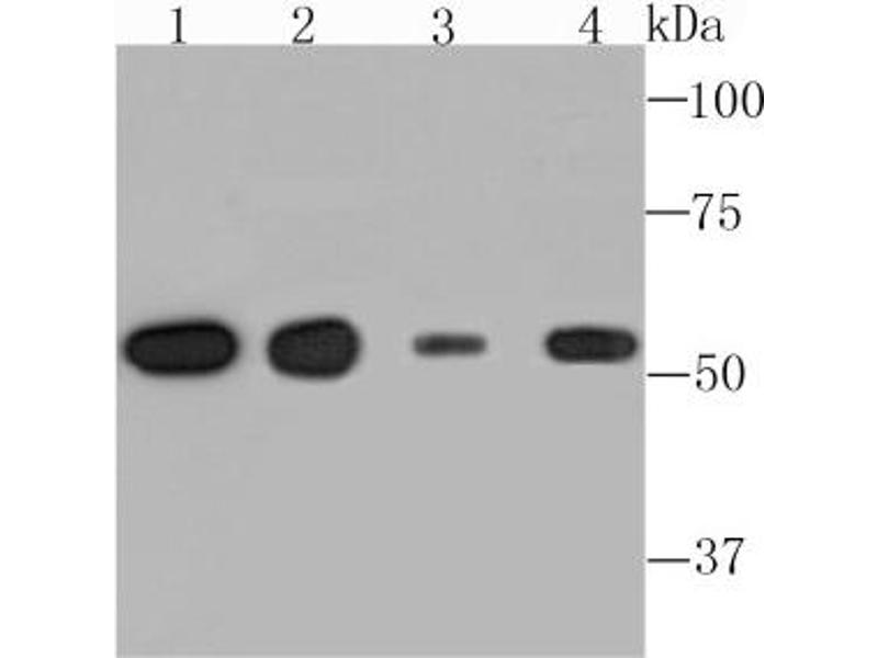 Western Blotting (WB) image for anti-Tubulin, alpha 4a (TUBA4A) (AA 1-200) antibody (ABIN5953336)