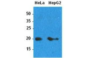 Image no. 1 for anti-ADP-Ribosylation Factor 1 (ARF1) (AA 1-181) antibody (ABIN932177)